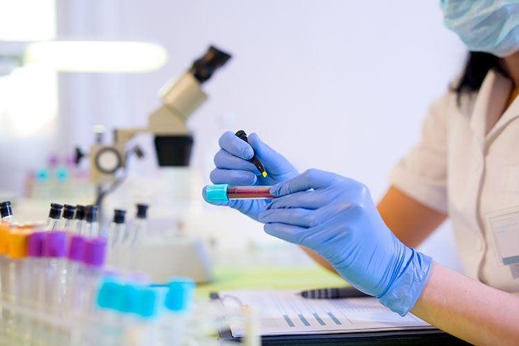 La proteina C-reattiva nel sangue Un indice importante di infiammazione