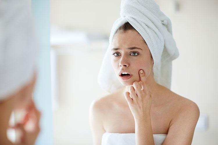 Stress e cosmetici tra le cause dell'acne da adulti