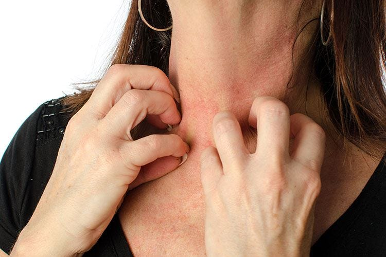 Stress e malattie della pelle Esiste un legame?