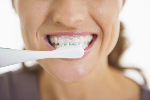 Buone abitudini per prevenire l'ictus? Una in particolare, lavarsi i denti! - Italia a Tavola