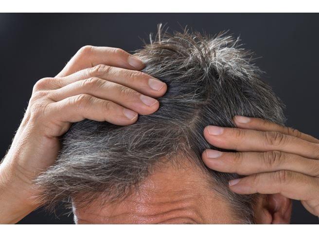 Caduta dei capelli, per curarla servono farmaci e bisturi