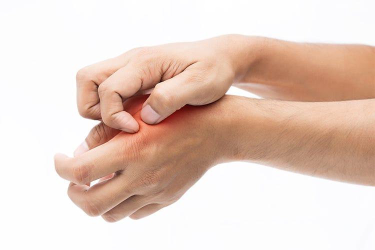 la dermatite da nichel si cura a tavola consigliati i test sulle